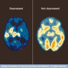 images depressed brain and not